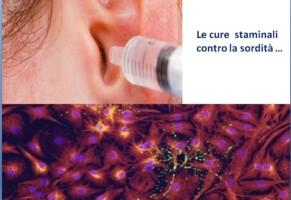A che punto sono gli studi sull'uso di staminali nella cura della sordità  ?