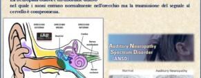 Neuropatia uditiva